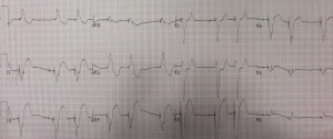 EKG of the day