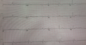 EKG of the day 5_29