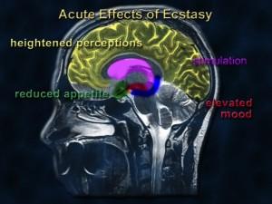 Images courtesy of National Institute on Drug Abuse