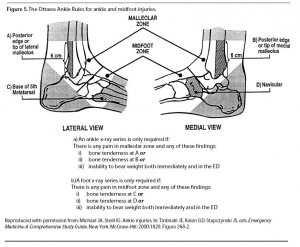 The_Ottawa_Ankle_Rules_for_ankle_and_midfoot_injuries_Emegency_Medicine_Practice_1