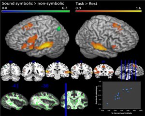 fMRI image of sound symbolic neural activity